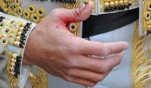 La mano de Javier Castaño muestra la herida que sufrió en Madrid.